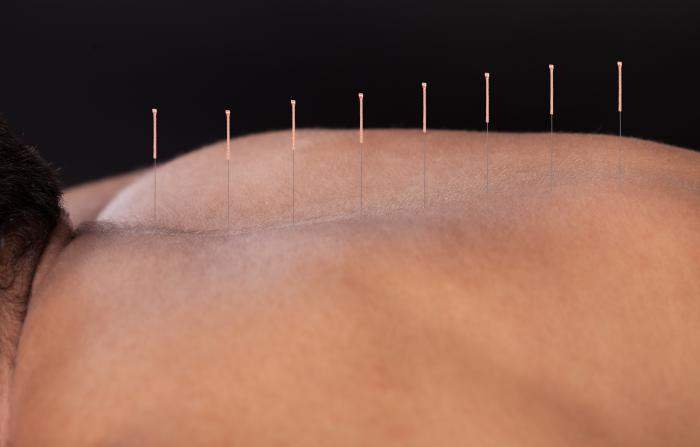 Acupuncture on the back